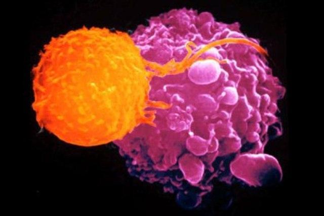 No agli antiossidanti contro il cancro